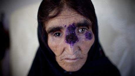 le-diable-d-alep-une-terrible-maladie-qui-ravage-la-syrie_74559_w460