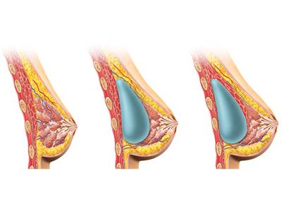 implants-mammaire