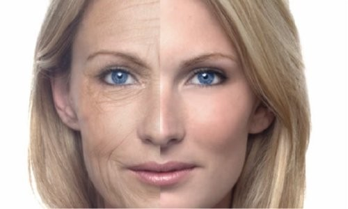 lifting-cervico-facial